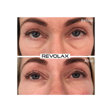 Revolax SUB-Q Lidocaine, image , 4 image
