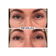 Revolax Fine Lidocaine, image , 4 image