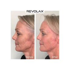 Revolax Fine Lidocaine, image , 5 image